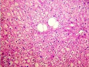 Гістозріз печінки кроля, вирощеного за ретро-технологією
